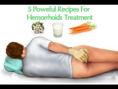 Natural Remedy To Treat Hemorrhoids